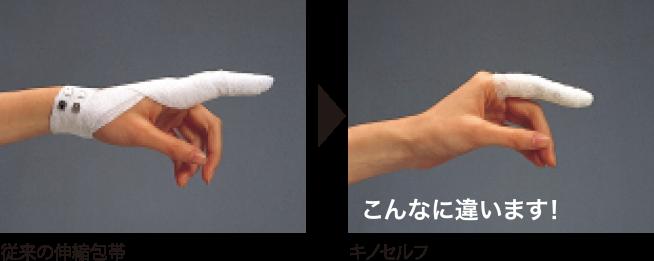 従来の包帯との比較