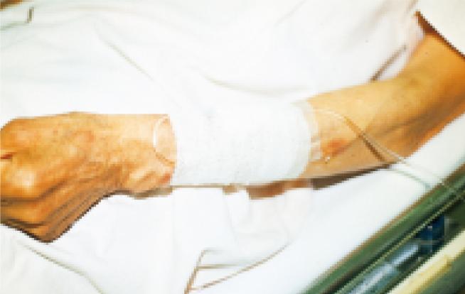 点滴時における注射針の固定