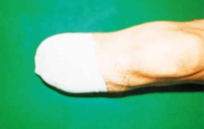 下肢断端部の圧迫固定